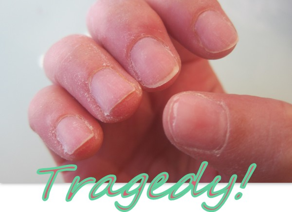 fecked nails