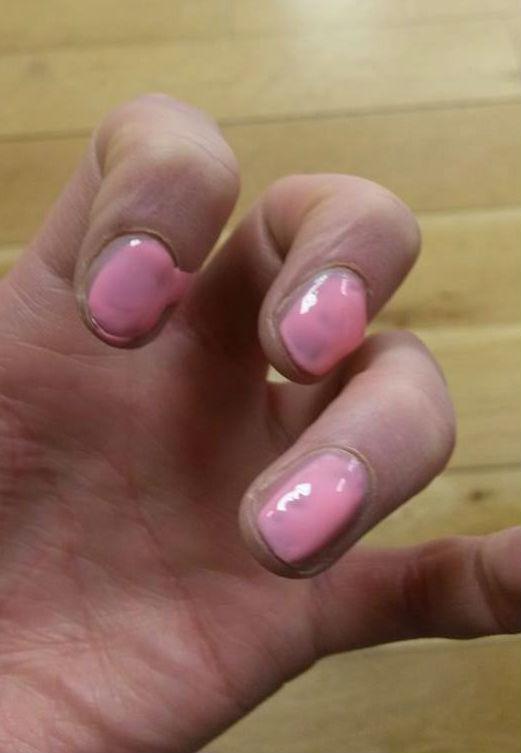 runny nails