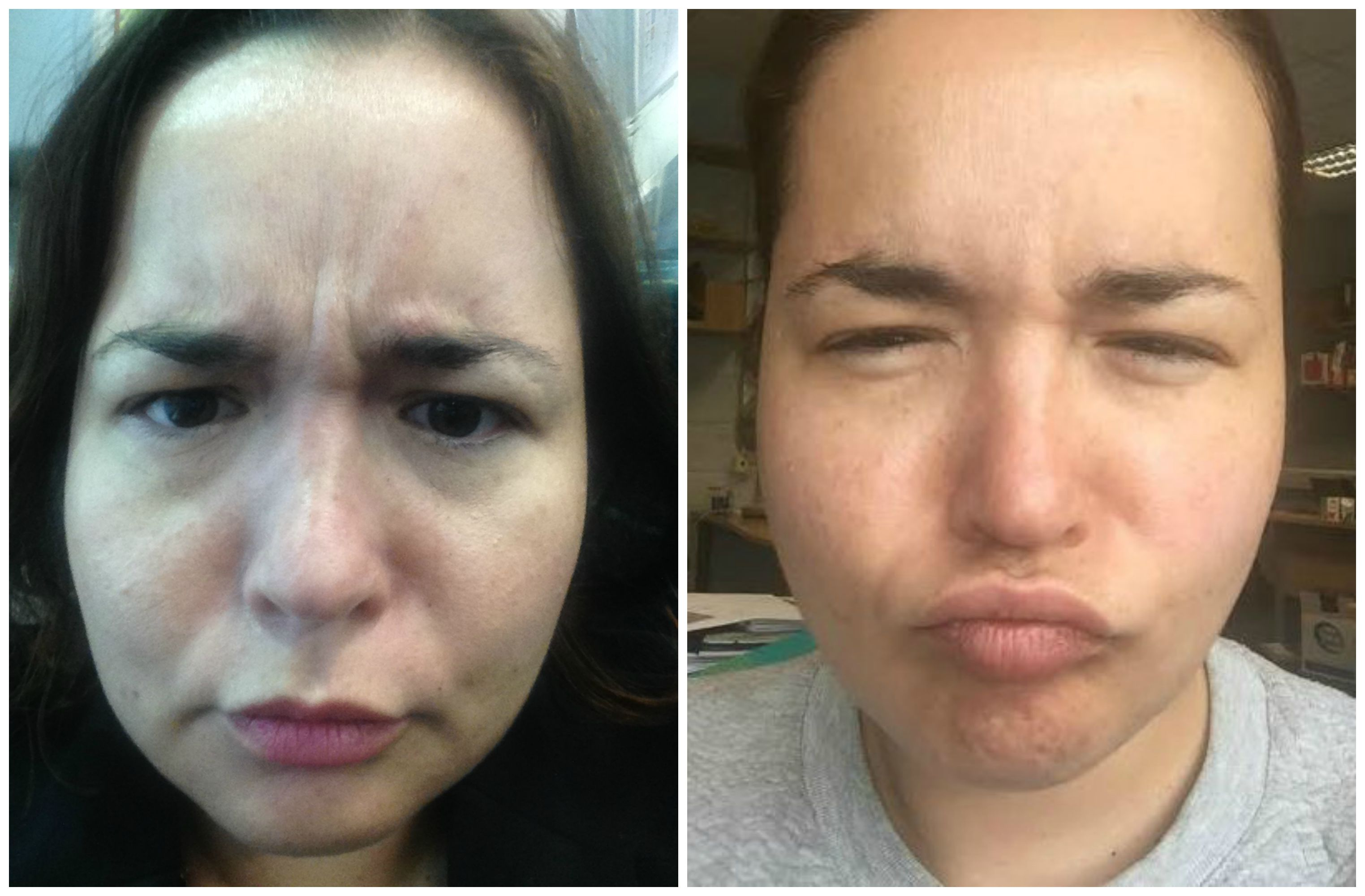 Botox One Womans Personal Experience Beaut