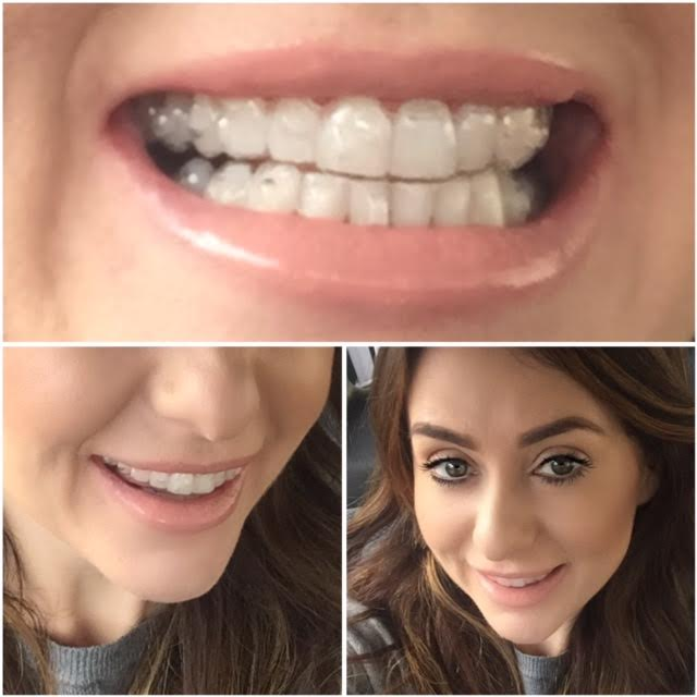 celebrity teeth invisaline clearbraces