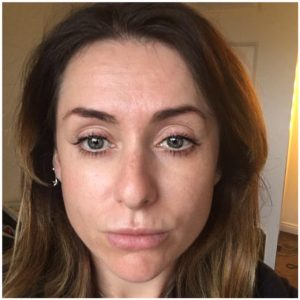 What happened when we tried the new Botox technique? | Beaut ie