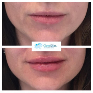 Everything you need to know when considering lip fillers | Beaut ie